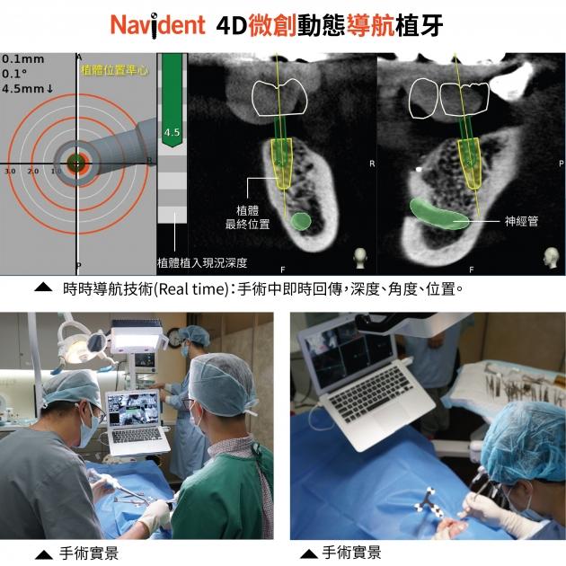4D微創動態導航植牙 1