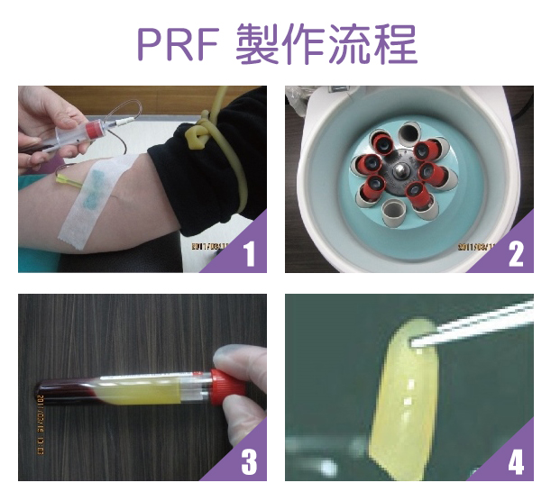 PRF富含血小板纖維蛋白 2