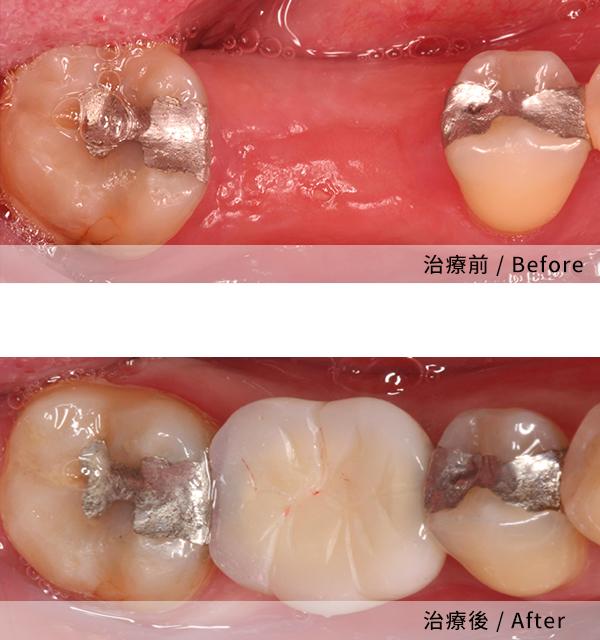 全程無痛的植牙過程 2