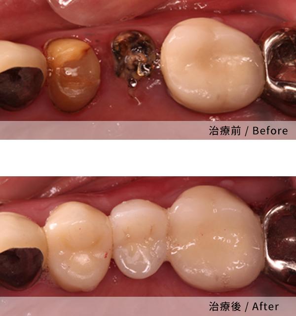 從評估到植牙完成我非常滿意 2