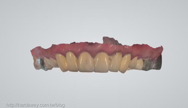 VIP級牙齒健檢 完整口腔醫療服務 5