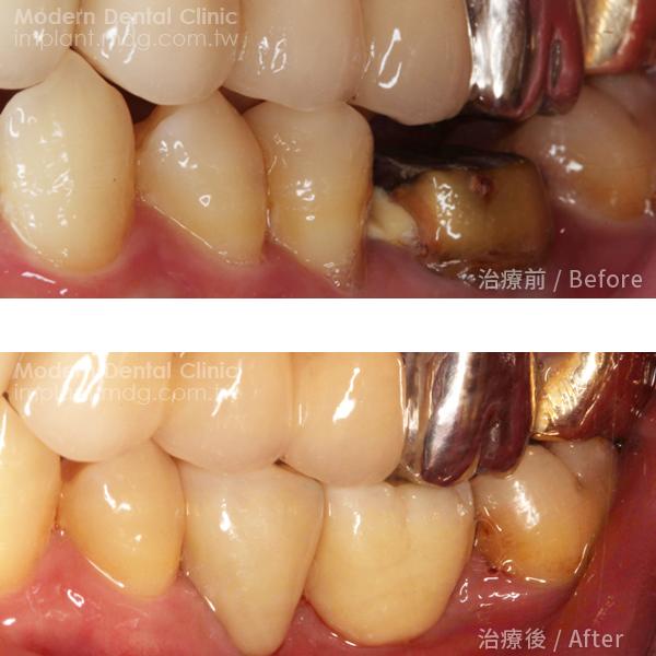 專業細心治療十分推薦當代牙醫植牙 2