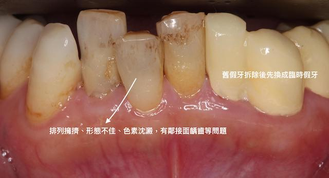 牙周病治療推薦: 療程包含全口牙周病/全瓷冠假牙/陶瓷貼片/植牙 2