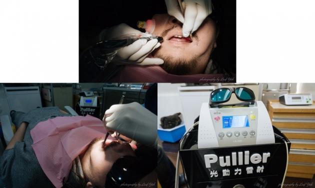 植牙怕痛? 舒眠植牙會是你的好朋友 5