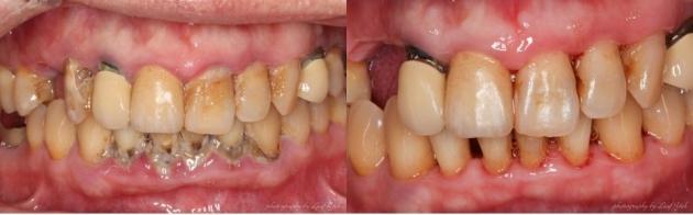 植牙要成功,牙周健康是首要! 1
