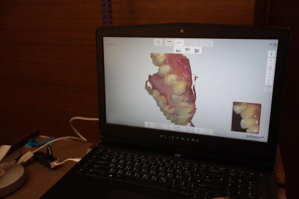 360度數位口腔掃瞄 檢查洗牙初體驗 1